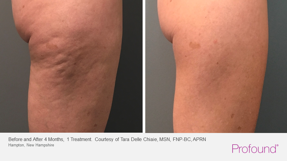 Profound cellulite reduction and skin tightening on the thighs before and after photo