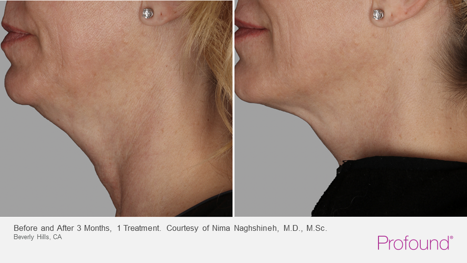 profound jawline contouring and loose skin beneath the chin reduction