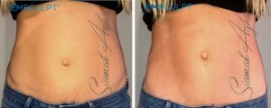 emsculpt before and after photo patient 2 front