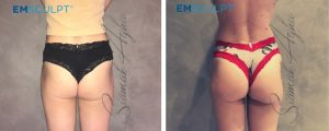 emsculpt before and after photo patient 4 back
