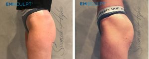emsculpt before and after photo patient 5 side