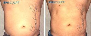 emsculpt before and after photo patient 1 front