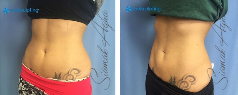 CoolSculpting Love Handles and Waist