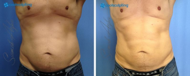 Irvine Cryolipolysis