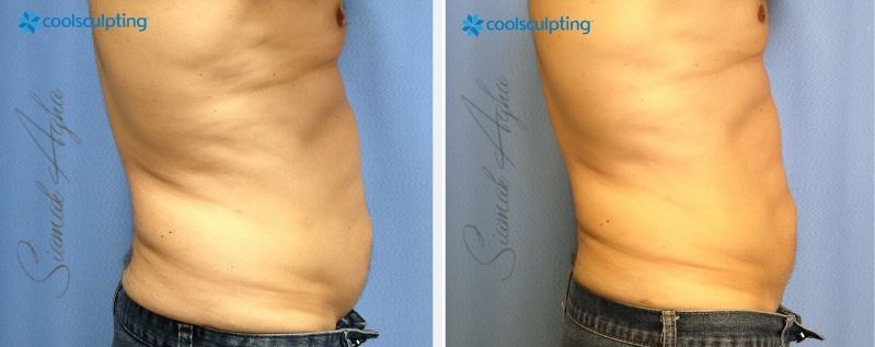 Orange County Zeltiq CoolSculpting