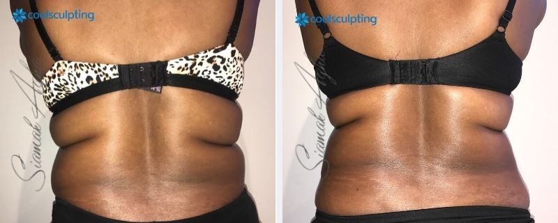 CoolSculpting Garden Grove