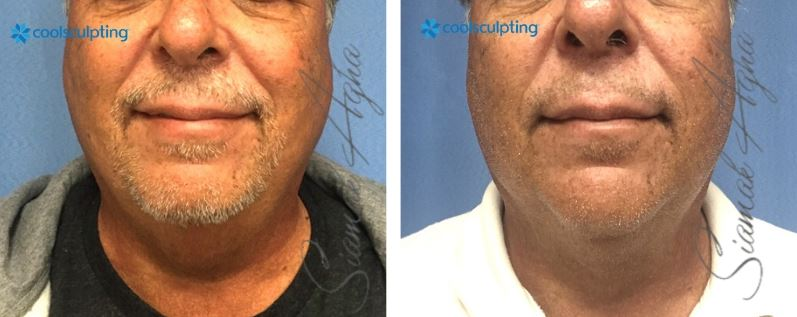 CoolSculpting Huntington Beach