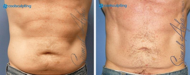 Men Chest CoolSculpting