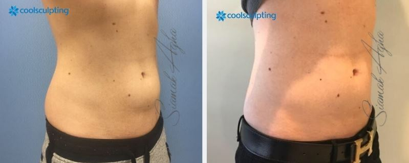 Learn More:  Orange County CoolSculpting ® Cost Orange County CoolSculpting ® Fat Reduction Orange County CoolSculpting ® Fat Orange County CoolSculpting ® Results Orange County CoolSculpting ® Recovery Newport Beach Zeltiq Providers