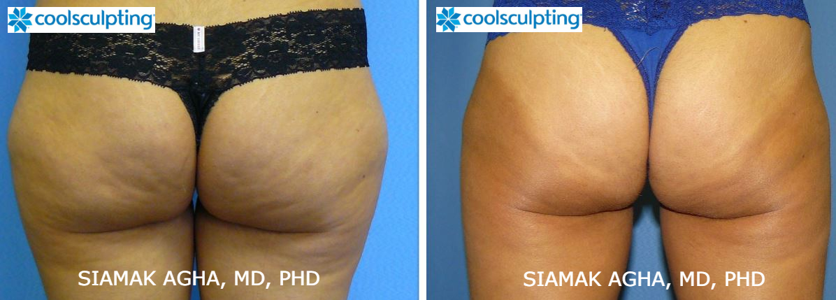 CoolSculpting Cost