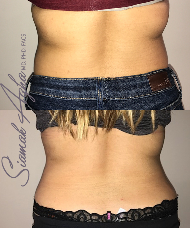 Orange County CoolSculpting Results