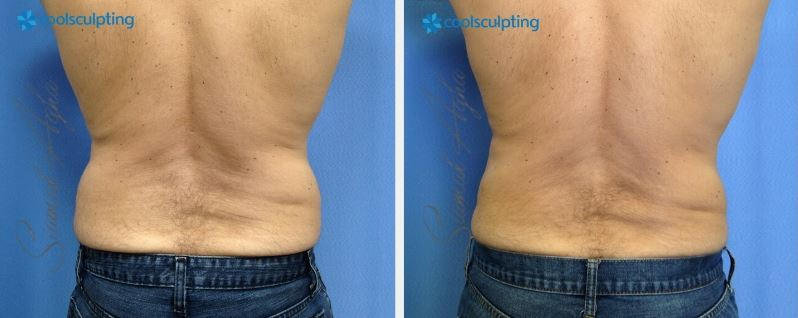 CoolSculpting over Liposuction