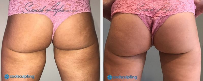 Orange County CoolSculpting Saddlebags