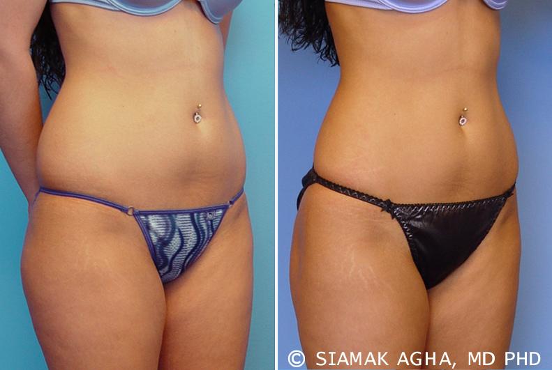 Liposuction Cost In Orange County 1 Best Medspa