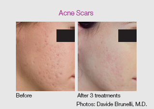 co2re laser skin resurfacing treatment for acne scars