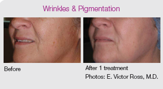 co2re laser skin resurfacing treatment for wrinkles and pigmentation