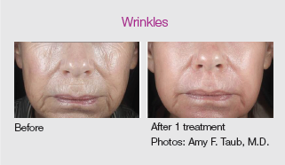 co2re laser skin resurfacing for wrinkles